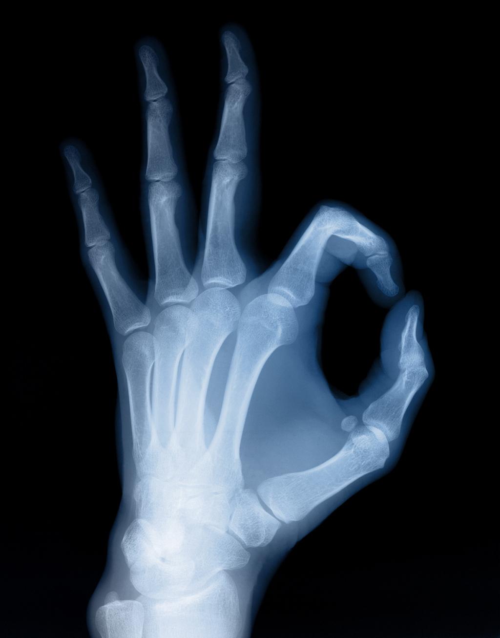 X-ray impregnation xxx image